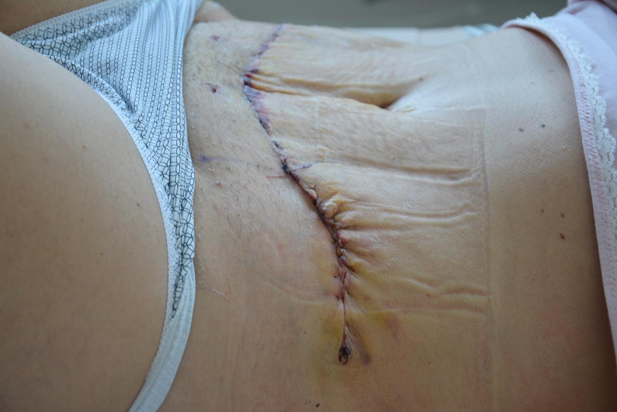 operacja plastyczna brzucha dr charotynowicz