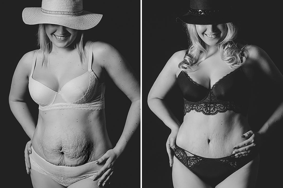 efekt przed i po operacji plastycznej brzucha